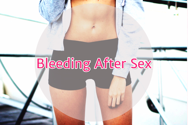 Bleeding After Sex